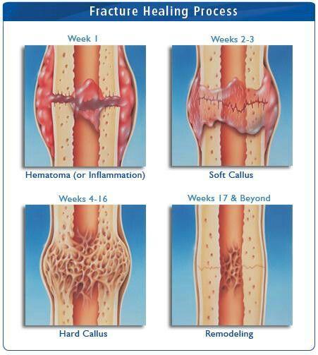 bone healing process pdf