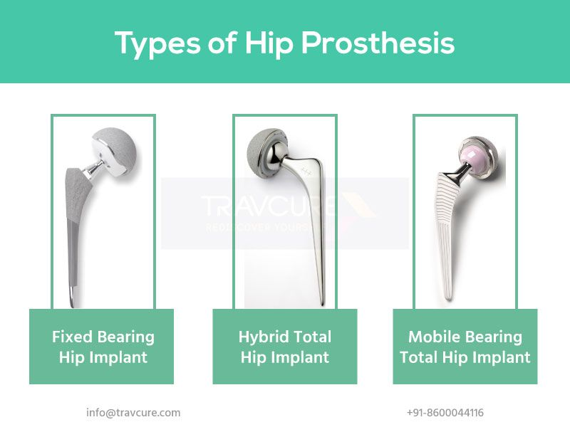 Hip Replacement Prosthesis Types Get To Know Your Artificial Hip