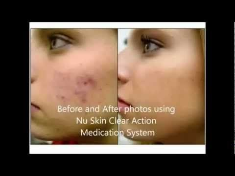 How To Get Rid Of Dry Skin From Acne Medication