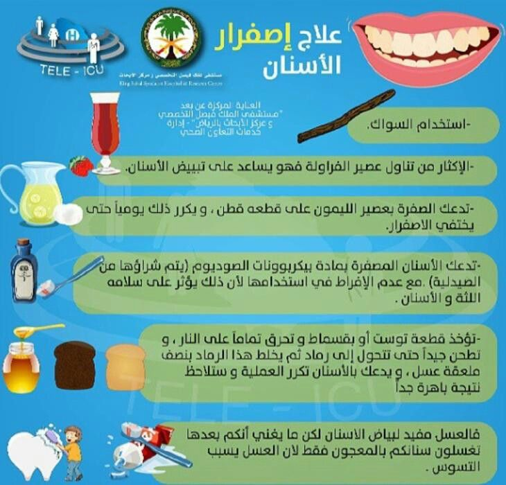 علاج اصفرار اﻷسنان Health Health And Beauty Baby Education