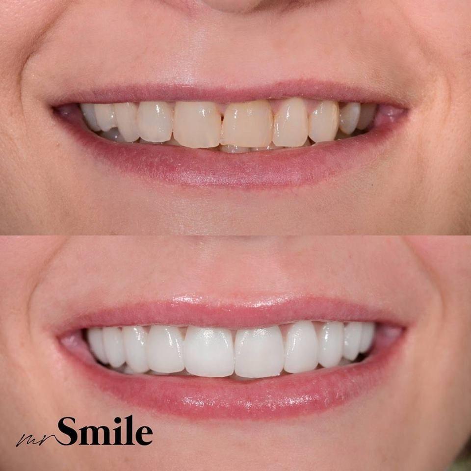 White smile trakice za izbeljivanje zuba dm