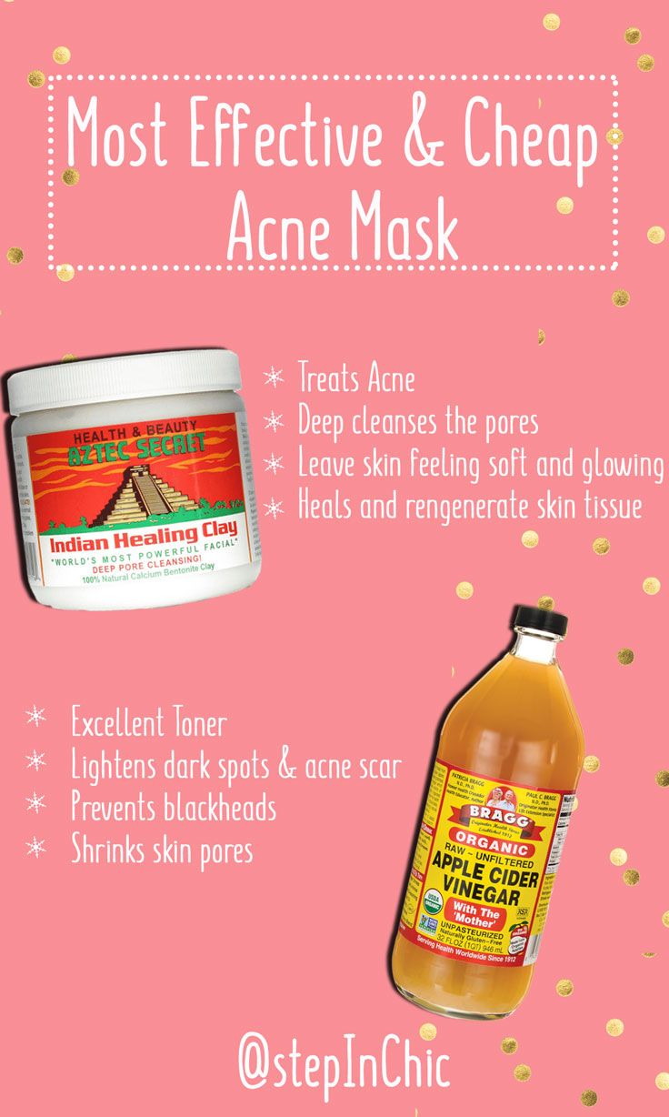 Effective Acne Mask Aztec Indian Healing Clay