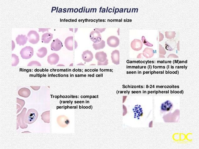 Plasmodium Falciparum Erythrocytic Stages  Parasitology