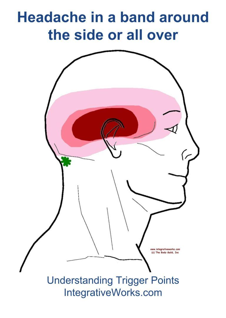 Understanding Trigger Points Headache All Over Or In A Band Around