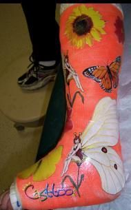 Leg cast decorations google search creative ways to for Arm cast decoration ideas