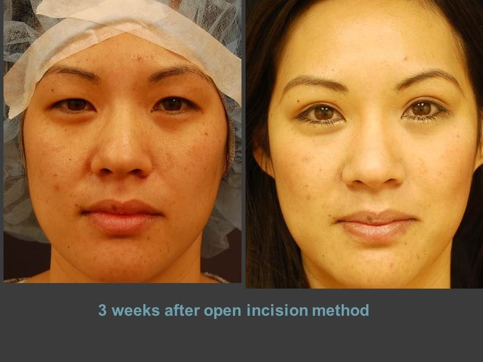 Great looking eyes after double eyelid surgery | Chase Lay MD