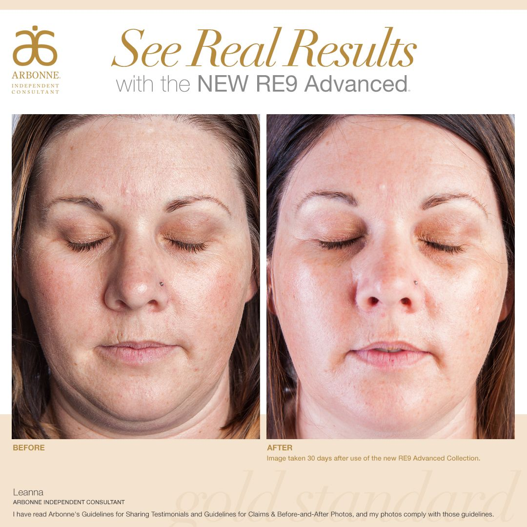Start Your Healthy Journey Today The First Five People To Visit My Website And Order A New Pr Natural Anti Aging Skin Care Younger Skin Naturally Younger Skin