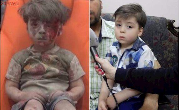 Veja como está menino sírio de foto icônica após ataque em 2016