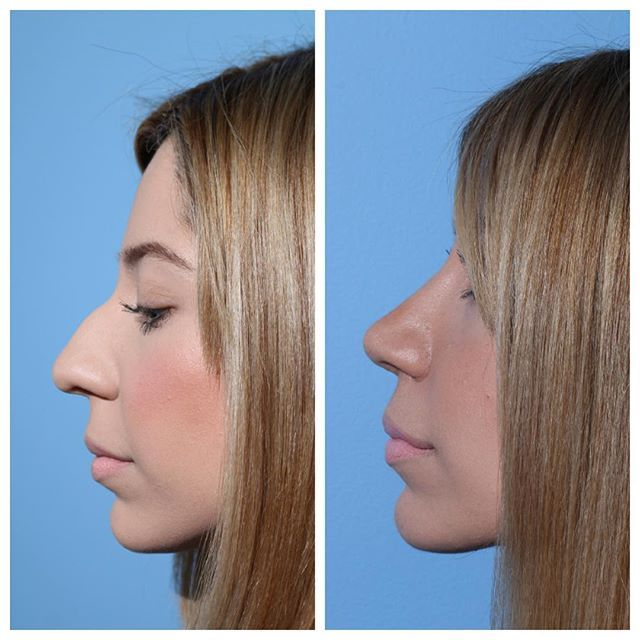 Transformationtuesday Before And After Results Of A Rhinoplasty