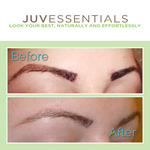 If you have an eyebrow tattoo that you\'re not happy with that needs ...