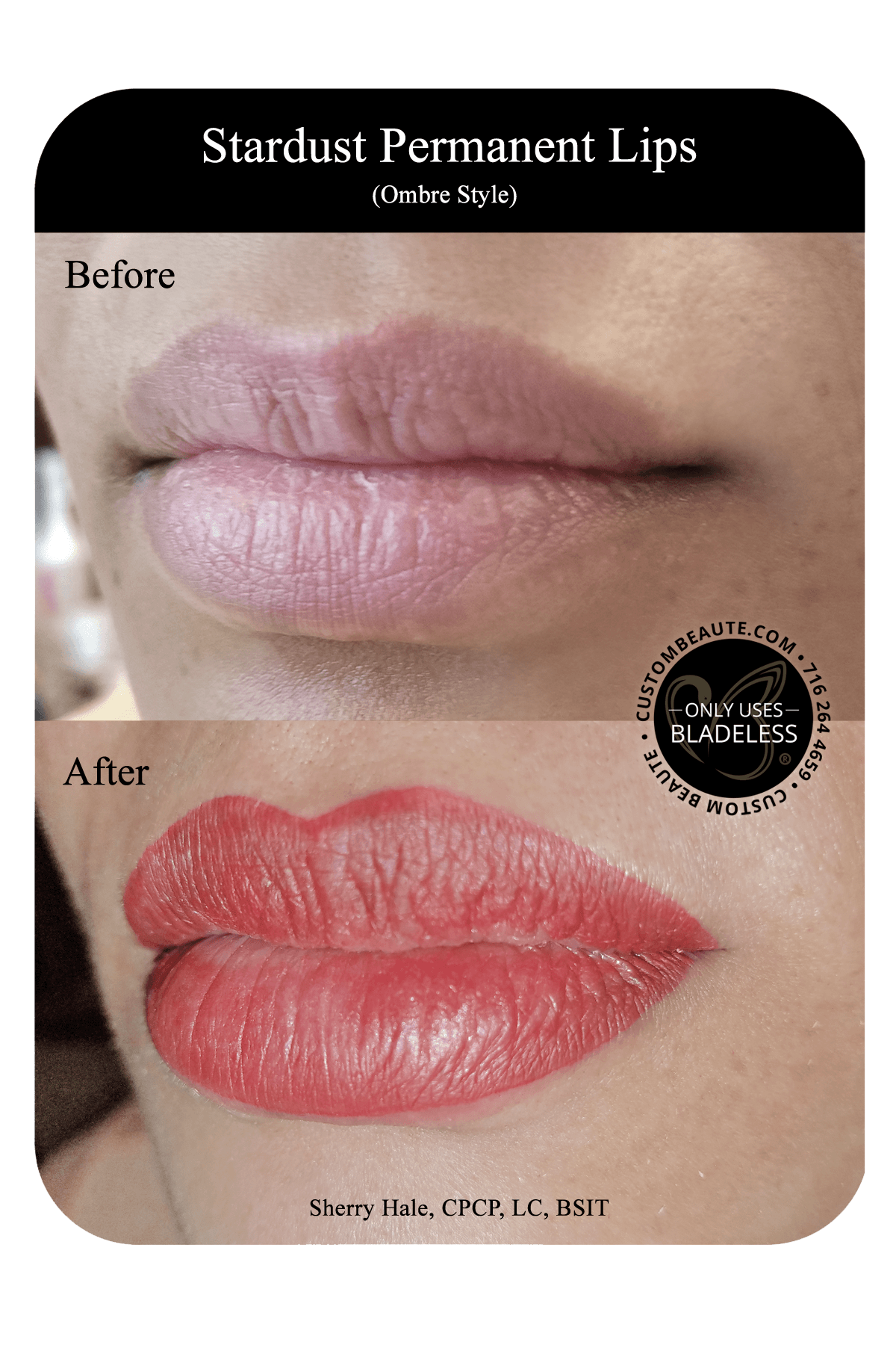 Permanent Lips in Amherst, Buffalo and Western New York