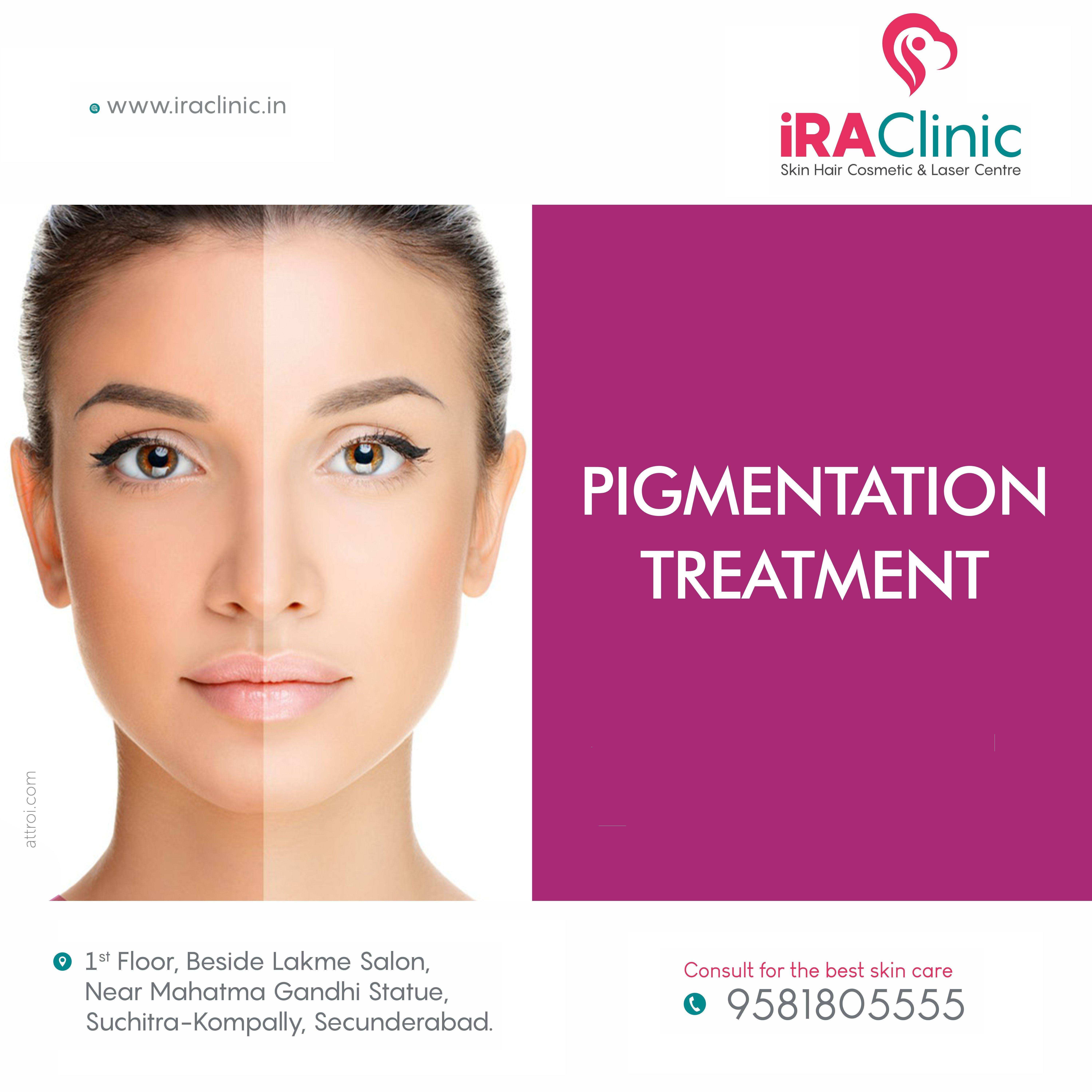 Pin By Ira Skin Hair Cosmetic Laser On Skin Treatments Pigmentation Treatment Cosmetics Laser Skin Treatments