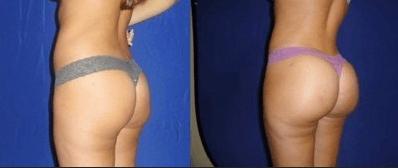 Chubby Teen Video Tits