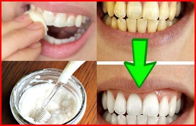 Como Branquear Os Dentes Com Bicarbonato De Sodio With Images