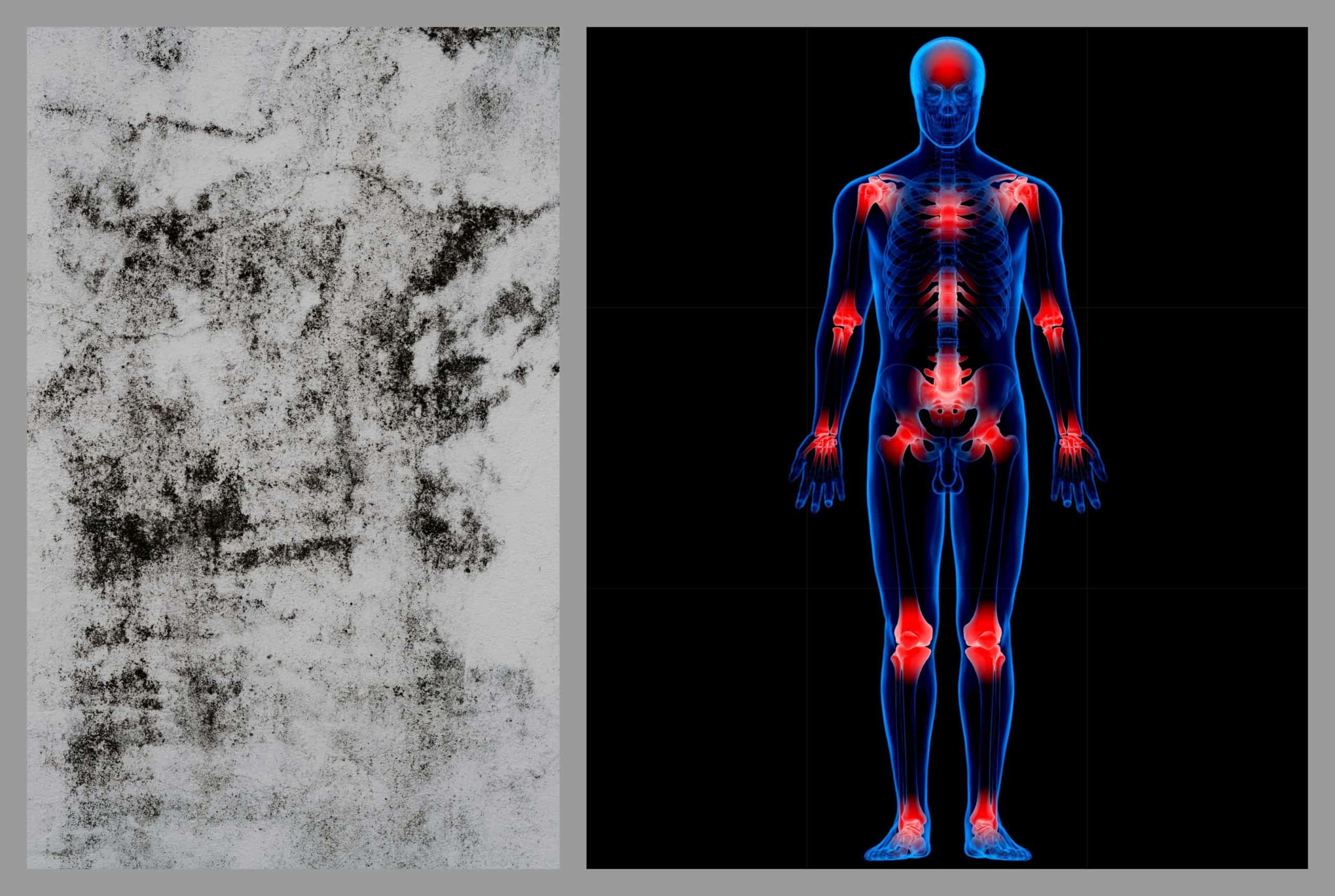 Inflammation Part 3 MoldInduced Illness in 2020