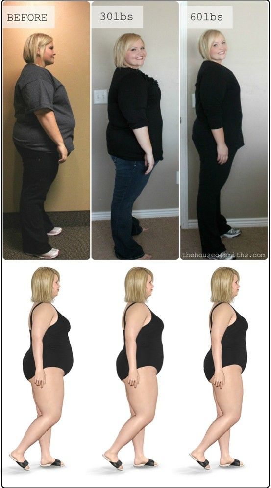 Weight loss dr hattiesburg ms
