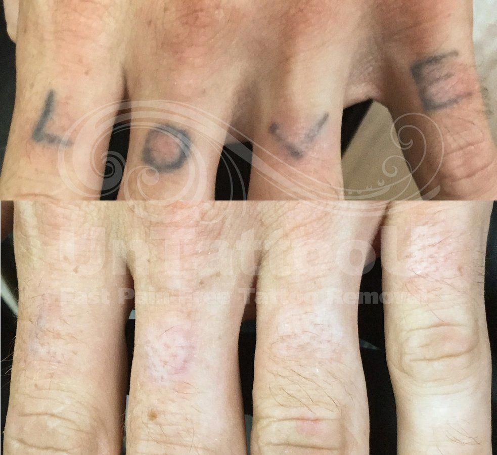 PicoSure Laser Tattoo Removal Before & After UnTattooU