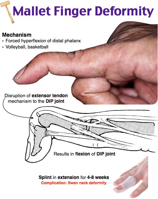 Mallet Finger Deformity Tx volar splinting of DIP joint in extension ...