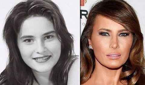 Melania Trump's changing face.