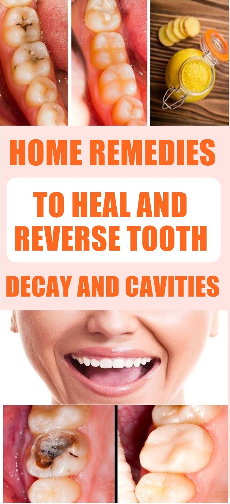Home Remedies To Heal And Reverse Tooth Decay And Cavities