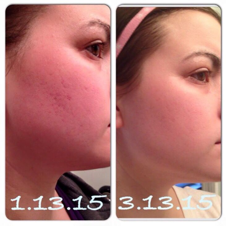 Scars Speak: This Is My Girlfriend Charelle. She Used Soothe In The
