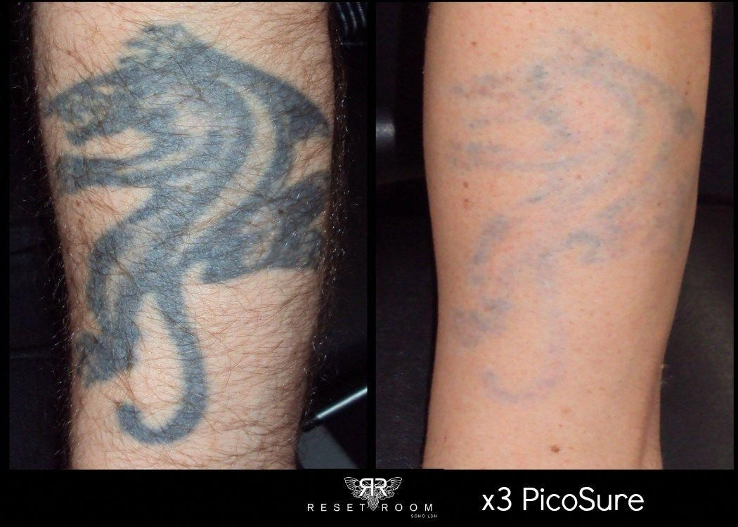 Before after photos of picosure laser tattoo removal
