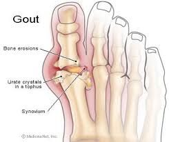 Gout treatments and Facts about Uric Acid
