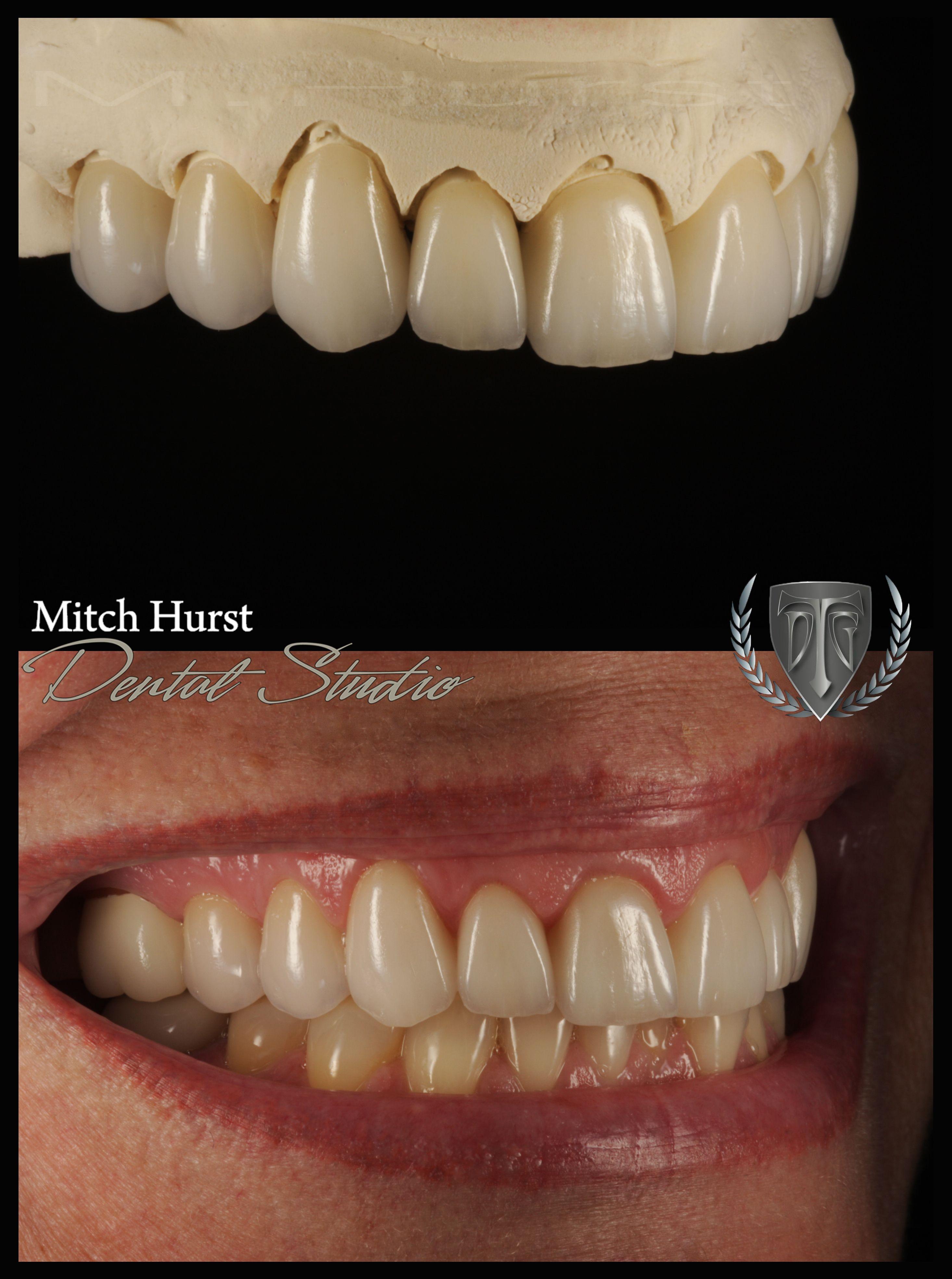 smile makeover, dental, cosmetic, beautiful. hurstdentalstudio.com ...