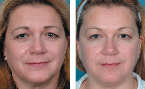 Remove wrinkles in 30 minutes with Skindulgence facelift