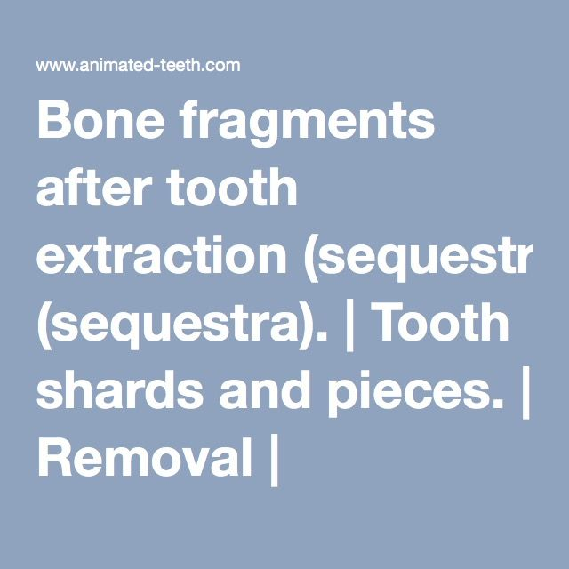 bone fragments after tooth extraction sequestra tooth shards