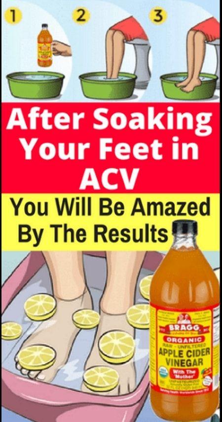 Soak Your Feet In Apple Cider Vinegar The Results Will Amaze You Cider Vinegar Benefits Apple Cider Vinegar Remedies Foot Detox Soak