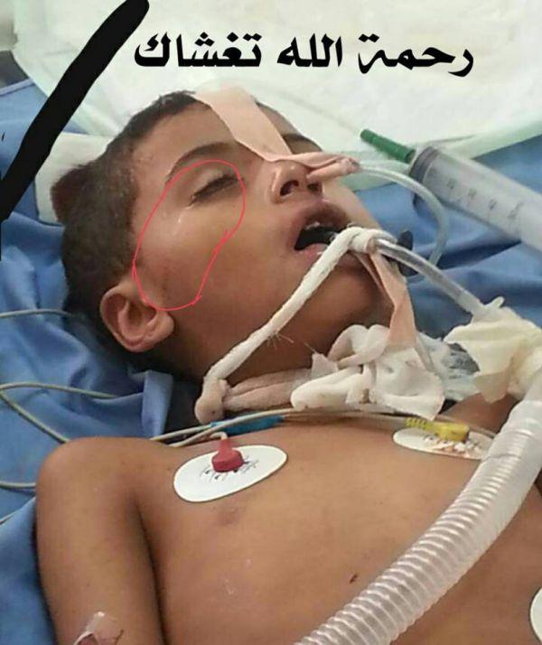 اليمن إب وفاة طفل نتيجة إصابته بطلق ناري راجع في إحدى حفلات الأعراس Earbuds Headphones Electronic Products