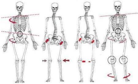Four types of posture deviations: torso and pelvic