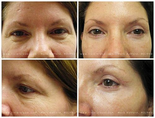 Upper And Lower Lid Blepharoplasty Using Micropixel Hd Technology