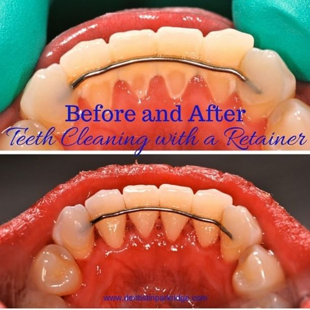 how to clean permanent retainer