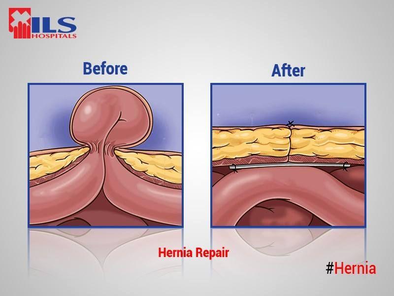 ILS Hospitals has been a pioneer of Laparoscopic #Hernia Repair ...