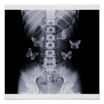 X-Ray Anticipatory Conceptual Butterflies Poster | Zazzle.com