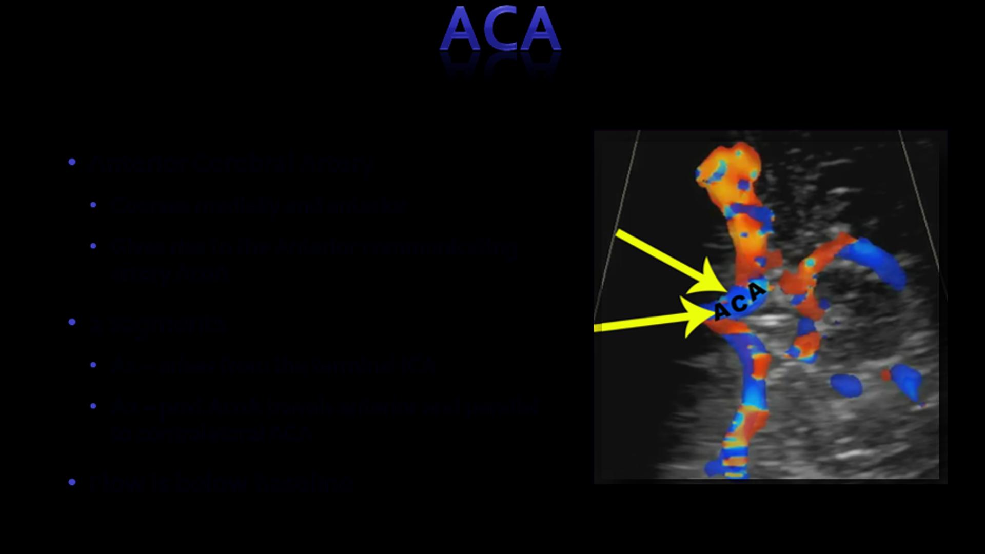 Transcranial Doppler Sonographic Tendencies In