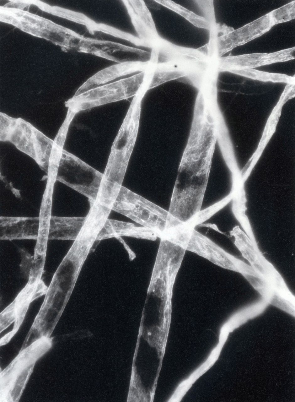 Unknown Photographer, Microphotographic Studies of Paper Fibers, (1945)
