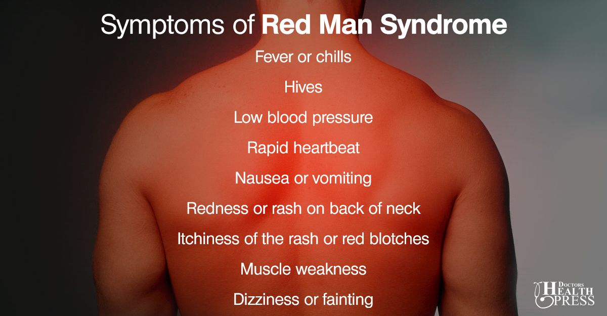 red man syndrome  causes  symptoms and treatments
