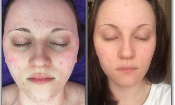 SkinBase Microdermabrasion Tuesday Transformation…acne