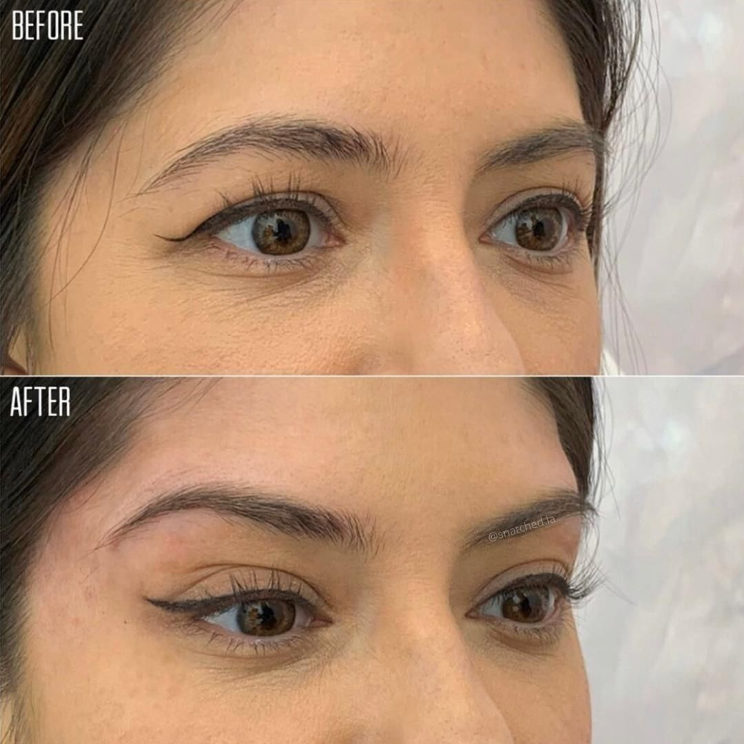 Snatched beauty 🤩 non-surgical Brow Lift using PDO Threads ...