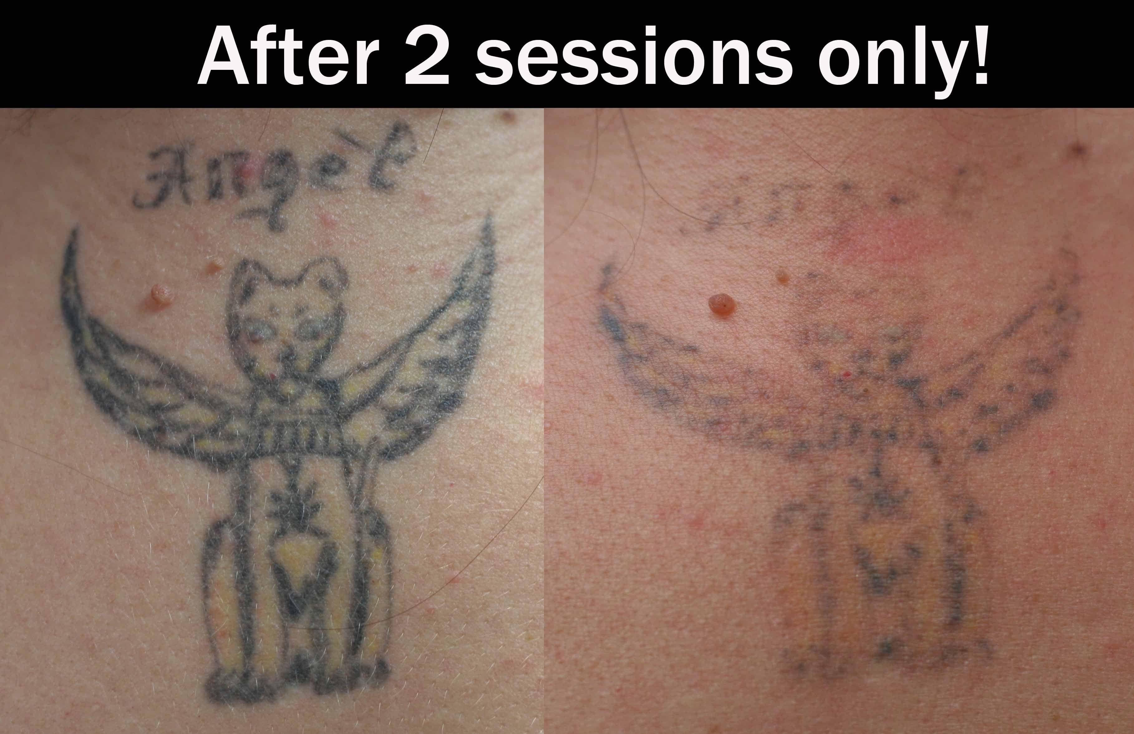 Laser Tattoo Removal « Eternal-Art | Laser tattoo