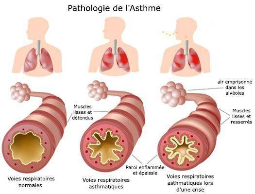 where you allergies respiratoires