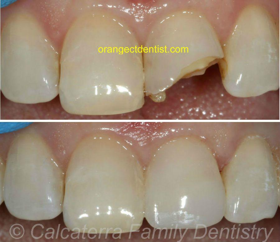 Dental Tooth Bonding Cosmetic Dentist Orange Woodbridge Milford