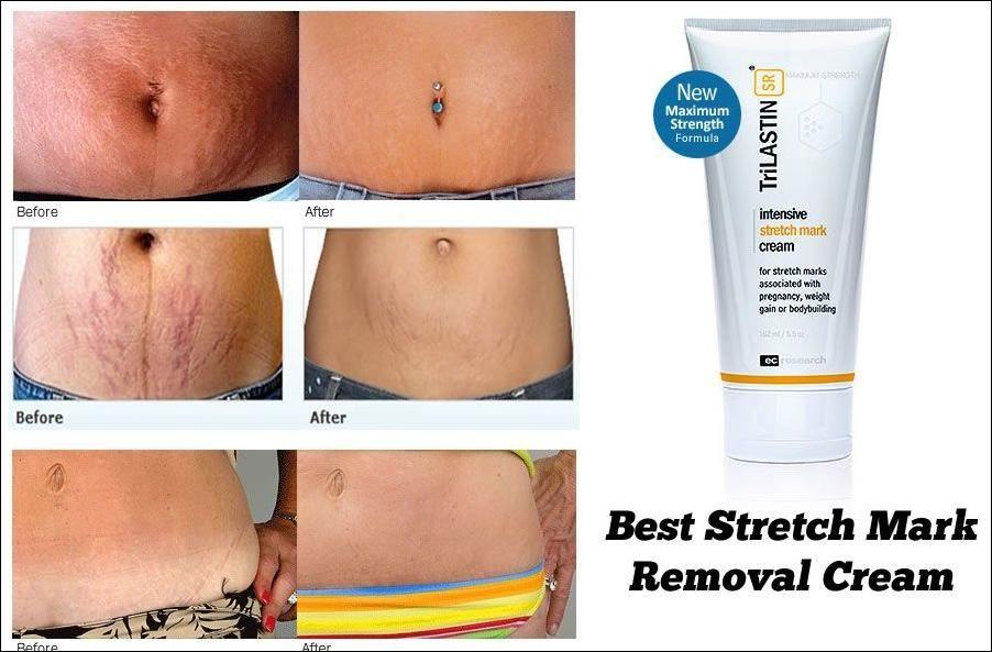 remove stretch marks