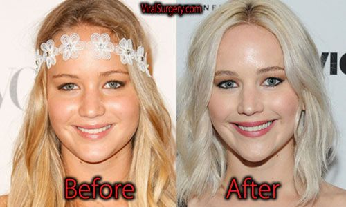 17 Celebrity Before-And-After Plastic Surgery Disasters ...