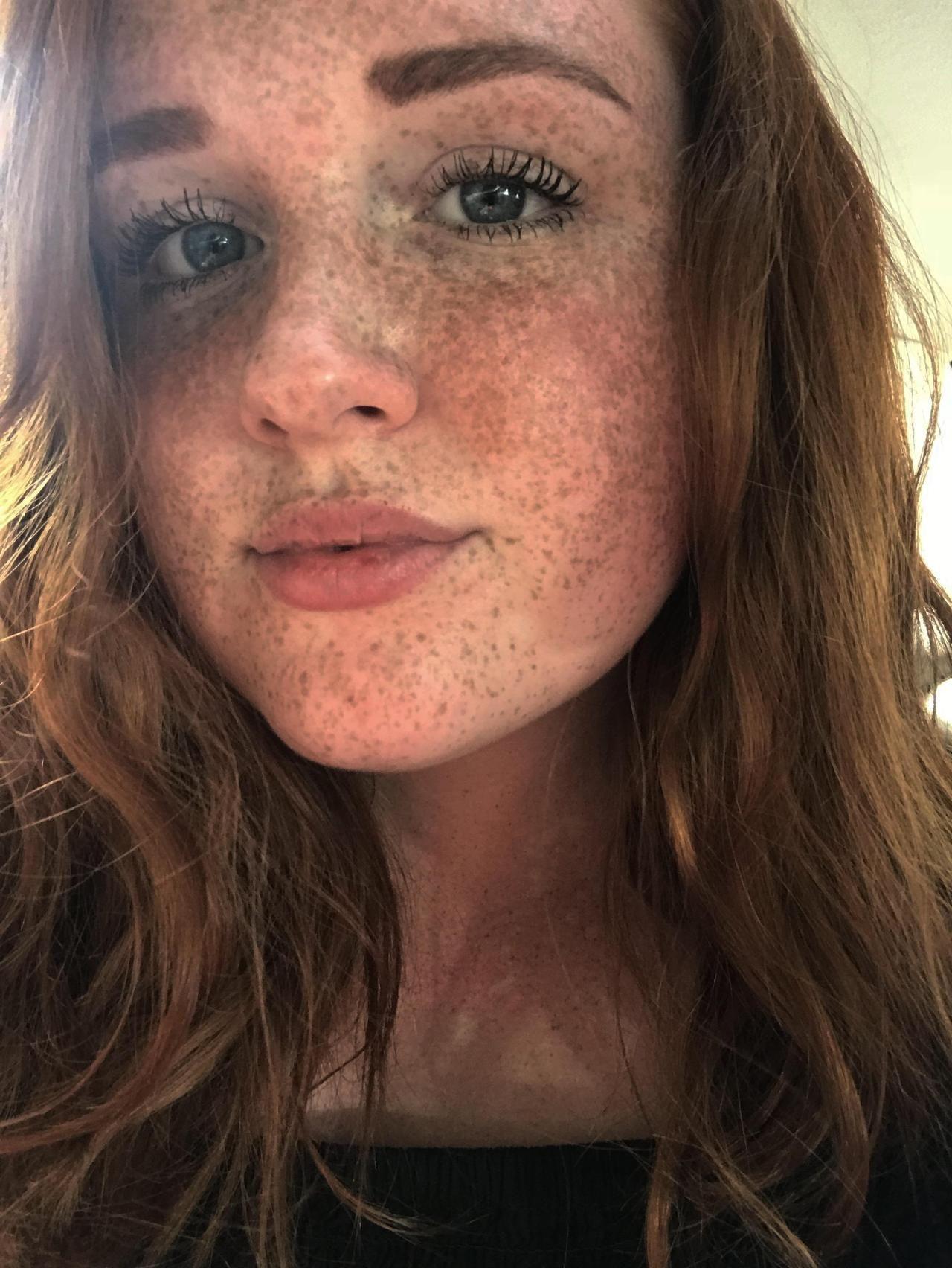 Reddit Pretty Girls Photo In 2020 Freckles Freckles Girl Redheads Freckles