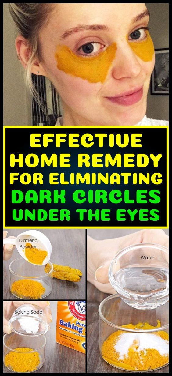 Effective Home Remedy For Eliminating Dark Circles Under The Eyes #darkcircle