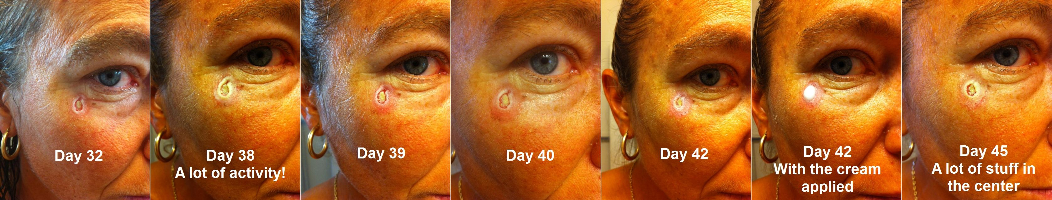 Natural Treatment Of Basal Cell Carcinoma With Curaderm